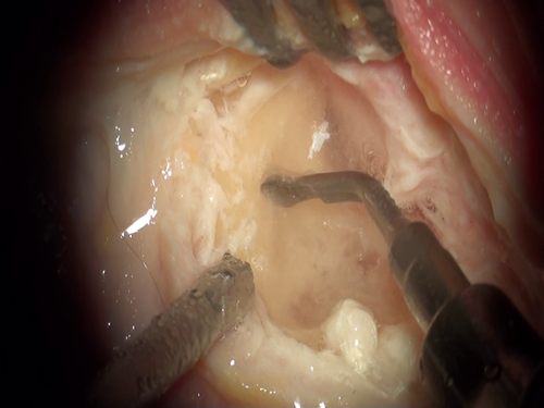 Mastoidectomy perfomed with MP4 + surgical insert