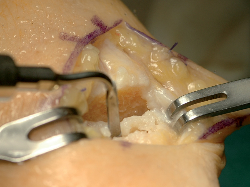Hand surgery performed by Prof. M.I. Rossello (San Paolo Hospital, Savona, Italy)